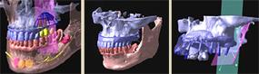 歯医者さんのレントゲン写真の見方|CT画像の見方