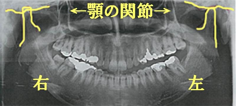 歯医者さんのレントゲン写真の見方|顎関節