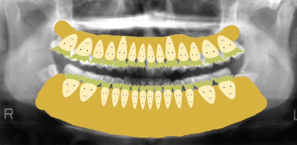 歯医者さんのレントゲン写真の見方
