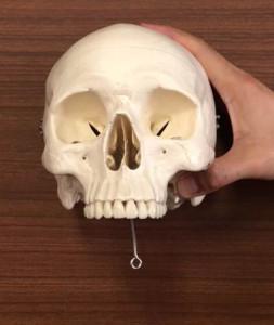 歯医者さんのレントゲン写真の見方|上顎の見方