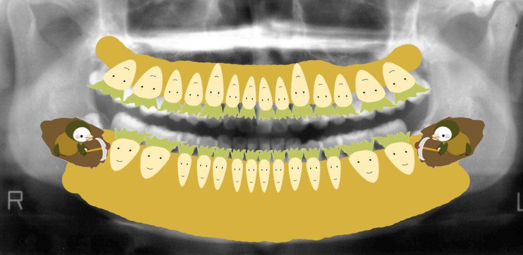 歯医者さんのレントゲン写真の見方|香川県高松市の吉本歯科医院