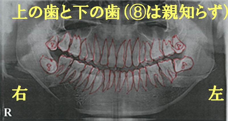 歯医者さんでのレントゲン写真の見方|香川県高松市の吉本歯科医院